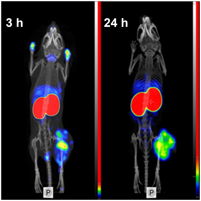 Imaging of EGFR-expressing A431 xenografts in BALB/C nu/nu mice using 99m Tc-ZEGFR:2377 at 3 and 24 h after injection.