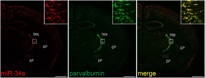 miR-34a expression in parvalbumin-positive neurons in the TRN and cortical layer V . Double FISH was performed using miR-34a and parvalbumin (PV) probes. DIG-labeled LNA-modified probes for miR-34a and fluorescein-labeled RNA probes for PV were hybridized at 48°C. Detection was carried out using the TSA Plus fluorescent kit for PV (green), followed by the TSA Plus biotin kit and Texas red streptavidin for miR-34a (red). The insert images are a higher magnification of the boxed brain areas including the TRN. EP, entopeduncular nucleus; GP, globus pallidus. Scale bars, 1 mm.