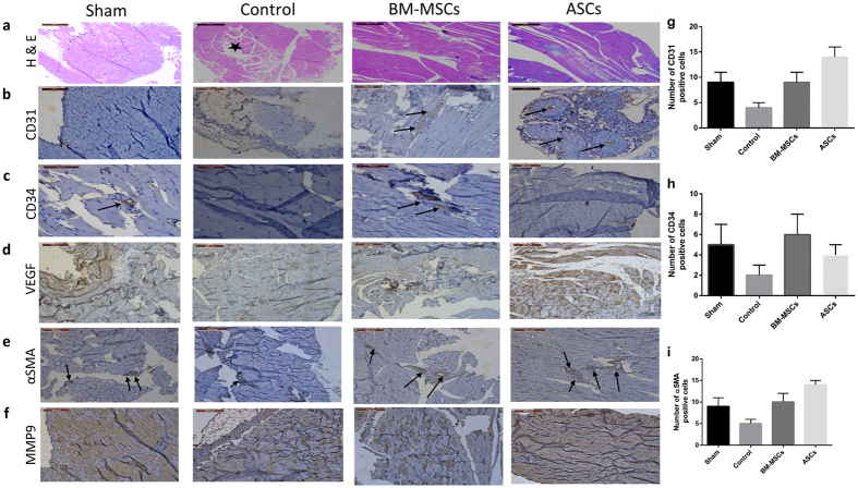 Representative histological analysis of hind limb muscles: Gastrocnemius muscles were collected after 4 weeks of cell therapy. Tissue samples were stained with: ( a ) H E showing muscle degeneration in the ischemic control group and infiltration of lymphocytes (*) compared to normal looking muscles in the BM-MSCs and ASCs treated groups ( b ) Positive staining for-CD31, in transplanted mice, especially In the ASCs-transplanted group (c) CD34 expression is pronounced in the BM-MSC-transplanted group ( d ) Increased expression of VEGF especially in the ASC-treated group (e) Staining with anti-αSMA is more pronounced in the ASCs group ( f ) staining of both tissues with anti-MMP9. Quantitative evaluation of the expression levels of CD31 ( g ), CD34 ( h ) and αSMA ( i ) was evaluated by counting the number of positive cells in each group. Data are shown as mean ± S.D. (error bars). Scale bars, 200 μm.