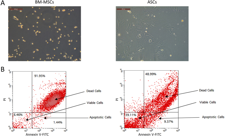 ASCs are more resistant to in vitro hypoxia apoptosis compared to BM-MSCs: BM-MSCs and ASCs were exposed to 1% O 2 for 24 hours and then measured for morphological changes and apoptotic resistance. ( A ) BM-MSCs showed significant changes in cell morphology as cells became pyknotic while ASCs maintained their elongated, spindle fibroblast-like phenotype. ( B ) Cellular apoptosis after hypoxia conditioning was measured by FACS analysis using Annexin-V and PI staining ( n = 3).