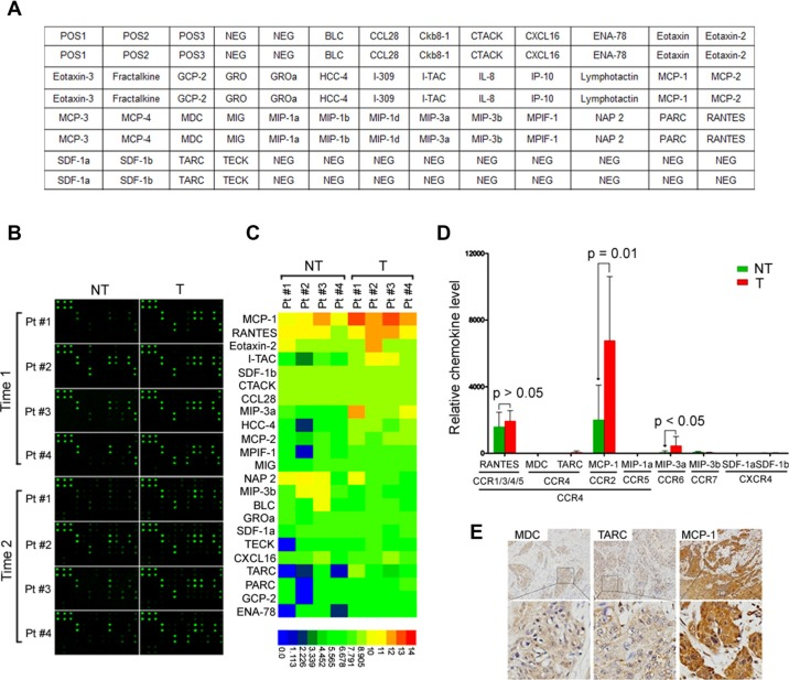 MCP-1 is increased in tumor tissues from HNSCC patients ( A ) Map of antibodies against chemokines on the RayBiotech Human <t>Chemokine</t> Antibody Array (AAH-CHE-G1). ( B ) Cell lysates from tumor and adjacent nontumor tissues were first applied to the array. Bound chemokines were then recognized by a pool of anti-chemokine antibodies corresponding to the antibodies spotted on the array. Similar results were observed in two independent arrays. ( C ) Semiquantification of scanned antibody arrays. The levels were normalized to internal positive controls present in each membrane. Semiquantitative levels are represented in the heat map. ( D ) Expression of CCR4, CCR5, CCR6, CCR7, CXCR4 ligands in tumor and adjacent nontumor tissues. Statistical differences were analyzed using Mann-Whitney U -tests. ( E ) Representative staining of HNSCC cases for MDC, TARC, and MCP-1 ( n = 15). Brown: positive staining × 100. Lower panels are magnified images of the boxed area in the corresponding upper panel. NT: nontumor; T: tumor.