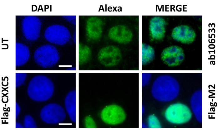 Intracellular Localization of CXXC5. MCF7 cells grown on coverslips in 12-well culture plates with medium containing FBS for 48 h were un-transfected (UT) or transfected with pcDNA3.1(−) bearing the Flag-CXXC5 (F-C5) cDNA. Thirty six hour after, cells were fixed with 2% paraformaldehyde in PBS and permeabilized with 0.4% Triton-X100 in PBS. For the detection of the endogenous CXXC5 protein in un-transfected cells, cells were blocked with 10% normal goat serum (NGS) followed by an incubation with ab106533 in PBS containing 2% NGS. Cells were then incubated with an Alexa Fluor ® -488 (green channel) conjugated goat anti-rabbit secondary antibody in PBS containing 2% NGS to detect endogenous CXXC5. For the detection of Flag-CXXC5 protein in transfected cells, following a block with 10% bovine serum albumin (BSA) in PBS, cells were incubated with the Flag-M2 antibody in PBS containing 3% BSA. Cells were then incubated with an Alexa Fluor ® -488 (green channel) conjugated goat anti-mouse secondary antibody in PBS containing 3% BSA. Nuclei were stained with 4′,6-diamidino-2-phenylindole (DAPI). (blue channel). Merge images are indicated. A representative image from two independent experiments is shown. Scale bar is 5 μm.