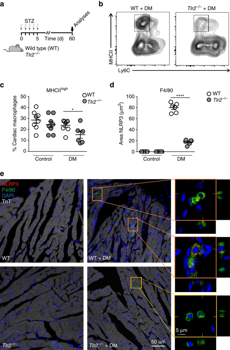 TLR2 regulates macrophage subsets and NLRP3 expression in diabetic hearts. ( a ) Experimental protocol. ( b ) Flow cytometry of cardiac macrophages shows decrease of MHCII Ly6C double-positive macrophages in the TLR2 −/− +DM mouse heart. ( c ) Percentage of cardiac macrophages positive for MHCII high and Ly6c (see Supplementary Fig. 8 for gating strategy) ( n of hearts per group=WT: 7; Tlr 2 −/− : 8; WT+DM: 8; Tlr 2 −/− +DM: 6). ( d ) Quantification of NLRP3 immunostained area in cardiac tissue shows increase of NLRP3 in cardiac macrophages from WT+DM mice ( n of hearts per group=WT: 6; Tlr 2 −/− : 6; WT+DM: 6; Tlr 2 −/− +DM: 6). ( e ) Representative immunostaining shows higher NLRP3 (red) content in cardiac (TnT—white) macrophages (F4/80—green) of WT+DM mice, but low expression in TLR2 −/− +DM. The results are expressed as mean±s.e.m. Scatter plots show values from individual mice, where horizontal bars represent means and error bars, s.e.m. * and **** represents, respectively P