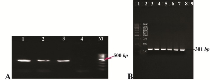 A) Gel agarose visualization of PCR products amplified by internal primers after amplification of cDNA as template. M (DNA marker); 1–3 (interest fragment amplified in optimized Tm=58° C ); 4 (negative control, human genomic DNA); B) PCR amplification results of the PTZ57R-PR vector containing protease ORF (301 bp ). Lanes 1 and 2 (DNA marker); lanes 3–6 (amplified by Taq DNA polymerase); lanes 7–8 (amplified by pfu DNA polymerase); lane 9 (negative control).