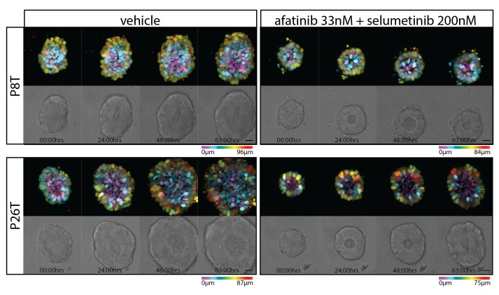 Stills from representative time-lapse imaging (three days) of CRC organoids P8T and P26T treated with vehicle (DMSO) or a combination of targeted inhibitors afatinib (33 nM) and selumetinib (200 nM) (see also Video 2 ). In every panel, upper images show color-coded depth of maximum-projected z-stacks of H2B-mNeonGreen fluorescent organoids. Lower images: corresponding transmitted light images. Time interval: 15 min. Scale bars, 20 µm. Representative time-lapse of five organoids per condition. DOI: http://dx.doi.org/10.7554/eLife.18489.005