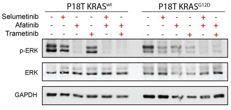 Drug response of CRC organoids as examined by Western blot. Combined Pan-HER/ MEK inhibition results in reduction of ERK phosphorylation in KRAS WT and KRAS G12D CRC organoids. Organoids were treated for 24 hr with MEK inhibitors selumetinib (1 μM), trametinib (10 nM), and the pan-HER inhibitor afatinib (1 μM) as indicated. WB is representative of four independent experiments. DOI: http://dx.doi.org/10.7554/eLife.18489.013