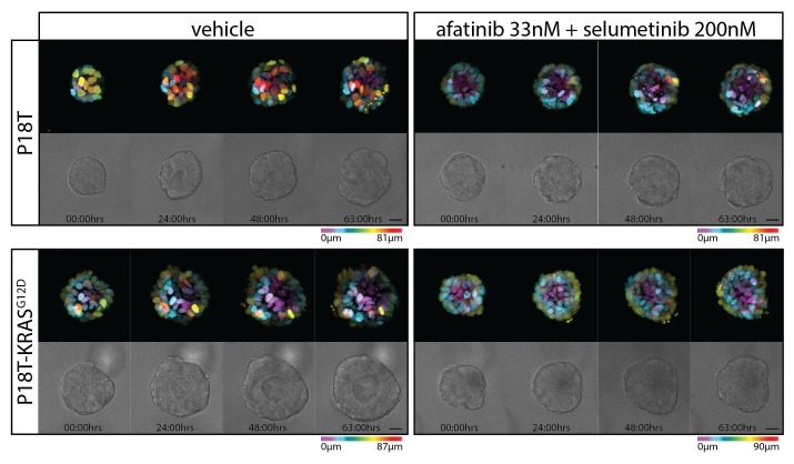 Stills from representative time-lapse imaging (three days) of CRC organoids P18T and P18T-KRAS G12D treated with vehicle (DMSO) or a combination of targeted inhibitors afatinib (33 nM) and selumetinib (200 nM) (see also Video 2 ). In every panel, upper images show color-coded depth of maximum-projected z-stacks of H2B-mNeonGreen fluorescent organoids. Lower images: corresponding transmitted light images. Time interval: 15 min. Scale bars, 20 µm. Representative time-lapse of five organoids per condition. DOI: http://dx.doi.org/10.7554/eLife.18489.014