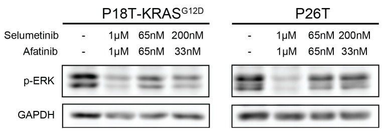 Drug response of P18T-KRAS G12D and P26T CRC organoids examined by Western bot after 24 hr. Most effective reduction of p-ERK is detected when the organoids were treated with high concentrations of inhibitors afatinib (1 μM) and selumetinib (1 μM) and not at lower concentrations (65 nM of both drugs or 33 nM afatinib + 200 nM of selumetinib). DOI: http://dx.doi.org/10.7554/eLife.18489.038