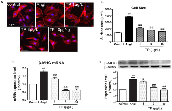 Triptolide attenuated the hypertrophic response of neonatal rat ventricular myocytes. Hypertrophic response of neonatal rat ventricular myocytes (NRVM) was induced by angiotensin II (Ang II). (A) NRVM treated with Ang II (1 μmol/L) and triptolide (TP) for 24 h, stained with rhodamine-phalloidin (bar = 50 μm); (B) cell size ( n = 50 cells in each group); (C) β-MHC mRNA expression determined using Real-time PCR ( n = 4); (D) β-MHC expression level determined using Western blotting ( n = 4). The data are presented as mean ± SEM, ∗∗ p