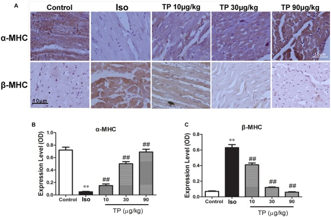 The effects of triptolide on the myocardial expression of myosin heavy chains (MHC). Cardiac hypertrophy was induced by isoproterenol (Iso, 5 mg/kg, s.c., for 14 days) in mice ( n = 8–10 in each group). The mice were treated with normal saline, Iso, and triptolide (10, 30, 90 μg/kg), respectively, for 14 days. (A) The expression of α- and β-MHC were determined with immunohistochemistry (bar = 10 μm); (B) Expression of α-MHC; (C) Expression of β-MHC. The data are presented as mean ± SEM, ∗∗ p