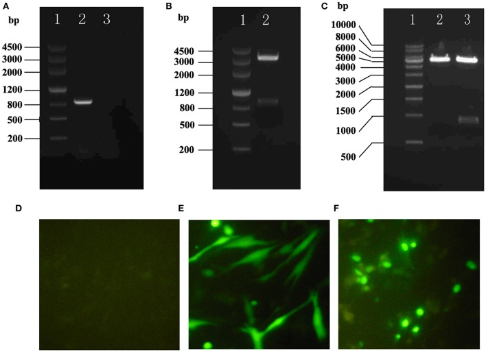 Construction and assay of pEGFP-C1/HHEX. (A) HHEX cDNA electrophoresis products of PCR (1: DNA marker III, 2: HHEX cDNA, 3: negative control); (B) pGM-T/HHEX digestion products (1: DNA marker III, 2: pGM-T/HHEXdigestion products); (C) pEGFP-C1/HHEX digestion products (1: 1Kb DNA marker; 2: pEGFP-C1 digestion products; 3: pEGFP-C1/HHEX digestion products); (D) Normal control; (E) pEGFP-C1; (F) pEGFP-C1/HHEX.