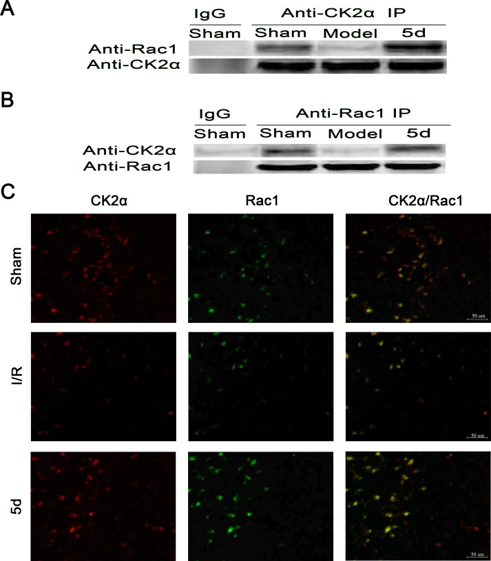 Effects of 5d on the relationship between CK2 and Rac1 protein levels Brain tissue lysates of the Sham or Mode group were immunoprecipitated with an anti-CK2α antibody A. or an anti-Rac1 antibody B. followed by Western blots with an anti-Rac1 antibody and an anti-CK2α antibody ( n = 4). C. Double labeling with an anti-CK2α antibody and an anti-Rac1 antibody using tissue lysates from brains of the Sham or Mode group ( n = 6 per group).
