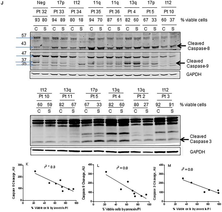 Degradation of IAPs and activation of caspases (8, 9, and 3) following smac066 treatment A.-B. Primary CLL cells were untreated or treated with smac066 (S) (5 μM). A. IAPs (XIAP, cIAP1 and anti-apoptotic Mcl-1) B. cIAP1 and anti-apoptotic family Bcl-2, and Bcl-xL were evaluated by immunoblotting analysis. Pt = patient; C = untreated CLL; S = smac066. C. Additional samples were evaluated in a similar fashion ( n = 8). The specific bands for XIAP and cIAP2 are indicated by arrows. Prognosis and percent viable cells determined by annexin V/PI binding assay for each sample is provided. The blots originated from the same gel (the membrane is either cut into different pieces according to kD of the protein or probed with two antibodies (XIAP and cIAP2) of different species (rabbit/mouse) at the same time; this is technically feasible with LI-COR Odyssey infrared imager. D. - F. Quantitation of immunoblots (3C) for XIAP, cIAP2, and Mcl-1, normalized to GAPDH levels. G. - I. Correlation between percent viable cells and protein levels of XIAP, cIAP2, and Mcl-1 following 24-hr treatment with smac066 (5 μM; n = 8). The r 2 on the correlation is obtained through linear regression analysis. J. Primary CLL cells were untreated or treated with smac066 (S) (5 μM) for 24 hr and caspase cleavages were measured by immunoblotting analysis. GAPDH was used as a loading control. Prognosis and percent viable cells determined by annexin V/PI binding assay for each sample is provided. The ratio between the protein of interest and its respective GAPDH is set as 100%. C = untreated CLL. K. - M. Correlation between percent apoptosis and caspase cleavage (caspases 8, 9 and 3) following smac066 treatment (5 μM; 24 hr). The r 2 on the correlation is obtained through linear regression analysis.