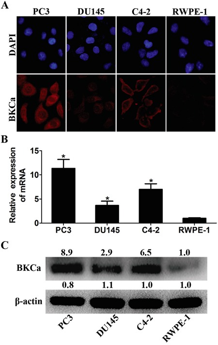 Expression analysis of BKCa in prostate cell lines A. Immunofluorescence staining of BKCa in cancerous prostate PC3, LNCaP and DU145 cells and normal prostate RWPE-1 cells. B. Real-time PCR analysis of BKCa mRNA in prostate cell lines. β-actin was used as internal control. The values were normalized to that of RWPE-1. C. Western blotting analysis of BKCa protein in prostate cell lines. β-actin was used as internal control and the values were normalized to that of RWPE-1. *P
