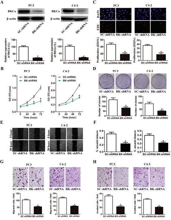 Downregulation of BKCa inhibits prostate cancer cell proliferation, migration and invasion A. Prostate cancer PC3 and C4-2 cells were stably infected with BKCa-shRNA (BK-shRNA) or Scrambled-shRNA (SC-shRNA). The expression of BKCa was analyzed by western blot. <t>β-actin</t> was used as loading control. B. Cell growth curves as determined by MTT assay. C. Percentage of EdU positive cells determined by EdU incorporation assay (lower panel) and representative images of EdU staining (upper panel) in PC3 and C4-2 cells. D. Effects of downregulation of BKCa on the colony-genic ability of PC3 and C4-2 cells. Representative images were shown in the upper panel and the number of colonies was illustrated in the lower panel. E. Reduced expression of BKCa inhibits prostate cancer cell migration as determined by scratch wound healing assay. The representative images of wound healing were shown in left panel. The relative wound closure was illustrated in right panel. F-H. Effects of downregulated BKCa on the migration and invasion of PC3 and C4-2 cells as determined by transwell assays. Representative images and mean numbers of migrated (G) and invaded (H) cells were shown in the upper and lower panel respectively. All the experiments were performed in triplicate. The data are shown as the means ± se. *P