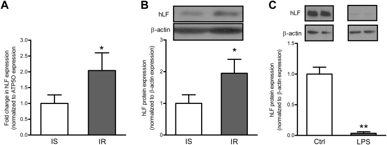 Intestinal Lf mRNA and protein expression in severely obese subjects and in Caco-2/15 cells. mRNA and protein levels of Lf were estimated in the intestine of insulin-sensitive and insulin-resistant obese subjects (n = 9 per group). The relative mRNA fold-changes between groups were calculated using the 2 −ΔΔCt method. mRNA data were normalized to ATP5O mRNA expression. Modulation of Lf protein following a 24-hour Caco-2/15 cell incubation with LPS (150 μg/mL). Protein expression values were normalized to β-actin protein expression. In B, samples were run on the same gel, but lanes were not contiguous. * P