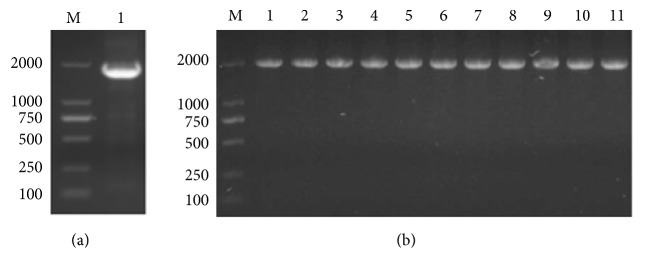 Identification of recombinant plasmids by colony PCR. (a) M: 2 kb ladder marker; 1: WT of Bst DNA pol LF gene; (b) M: 10 kb ladder marker; 1: WT of Bst DNA pol LF gene; 2: LF mutant D540A; 3: LF mutant D540E; 4: LF mutant G310A; 5: LF mutant G310L; 6: LF mutant R412A; 7: LF mutant R412E; 8: LF mutant K416A; 9: LF mutant K416D; 10: LF mutant G310A-D540E; 11: LF mutant G310L-D540E.
