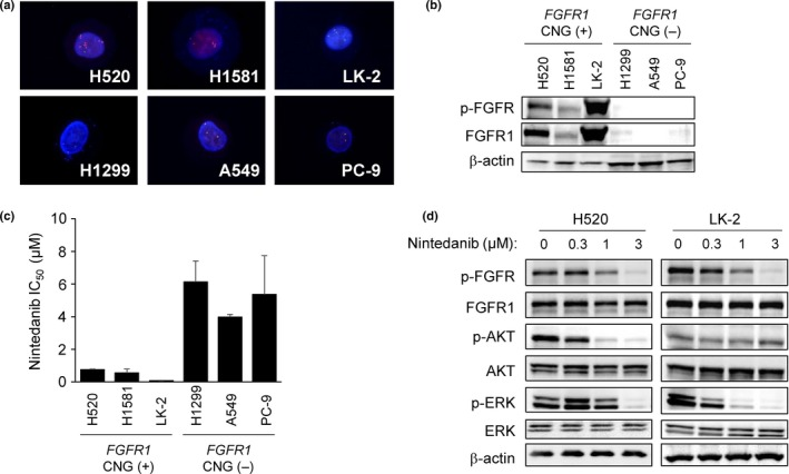 Sensitivity of lung cancer cell lines positive for FGFR 1 copy number gain ( CNG ) to nintedanib. (a) FISH analysis of FGFR 1 copy number in lung cancer cell lines. The 5′ and 3′ probe signals for FGFR 1 appear green and red, respectively. Nuclei are stained blue with DAPI . (b) Immunoblot analysis of phosphorylated fibroblast growth factor receptor (p‐ FGFR ), FGFR 1, and β‐actin (loading control) in lung cancer cell lines positive (H520, H1581, LK ‐2) or negative (H1299, A549, PC ‐9) for FGFR 1 CNG . (c) Effects of nintedanib on the proliferation of lung cancer cell lines according to FGFR 1 copy number status. The IC 50 values are means ± SD from three independent experiments. (d) Effects of nintedanib on FGFR 1, ERK , and AKT phosphorylation in FGFR 1 CNG ‐positive lung squamous cell carcinoma cell lines. H520 and LK ‐2 cells were incubated for 6 h in the presence of the indicated concentrations of nintedanib, after which cell lysates (25 μg soluble protein) were subjected to immunoblot analysis with antibodies to the indicated proteins.