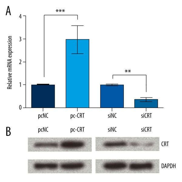 The difference in calreticulin (CRT) expression in transfected Schwann cells (SCs). SCs were transfected with pcDNA3.1 (pcNC), pcDNA3.1-CRT (pc-CRT), non-silencing small interfering RNA (siNC), or specific small interfering RNA against CRT (siCRT). After transfection, cells were harvested for quantitative real-time (qRT)-PCR ( A ) and Western blot analysis ( B ). Data presented are the mean of at least 3 independent experiments. Error bars indicate SD. ** P