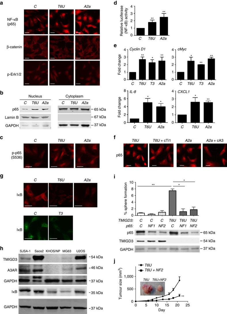 Regulation of the NF-κB pathway by TMIGD3 i1 and A3AR. ( a ) Immunofluorescence for NF-κB (p65), β-catenin and p-Erk1/2 using SJSA-1 cells infected with lentiviral vectors encoding non-silencing control ( C ),  T6U  (TMIGD3) or  A2a  (A3AR) shRNAs. Scale bar, 50μm. ( b ) Immunoblots for p65, Lamin B and glyceraldehyde 3-phosphate dehydrogenase (GAPDH), using nuclear and cytoplasmic extracts of SJSA-1 cells with or without downregulation of TMIGD3 ( T6U ) or A3AR ( A2a ). ( c ) Immunofluorescence for phosphorylated p65 (p-p65) at serine 536 (S536) using SJSA-1 cells with or without downregulation of TMIGD3 or A3AR. Scale bar, 50μm. ( d ) Luciferase assays for measuring the NF-κB activity in SJSA-1 cells downregulated for TMIGD3 or A3AR. Graph showing relative luciferase activity normalized to that of SJSA-1 cells infected with non-silencing control lentiviral vector. Error bars: means±s.d. ( n =3 independent experiments). ** P