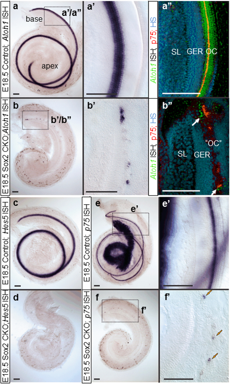 """Loss of Sox2 affects downstream gene expression in the organ of Corti. ( a,a', b,b' ) Atoh1 expression is dramatically reduced in Sox2 CKO mice at E18.5. ( a"""",b"""" ) Atoh1 ISH signal converting into a fluorescent signal shows the relative topology to the inner pillar cell marker p75. Note that the scattered HCs are found medial and lateral to p75 positive cells (white arrows; b""""). However, p75 expression (arrows) is discontinuous in the base ( b"""",f,f' ) and absent in the apex compared to prominent labeling in the inner pillar cells and the spiral ganglion neurons in control animals ( e,e' ). ( c , d ) Another supporting cell marker, Hes5 , shows no expression at all in the Sox2 CKO mice at E18.5. Scale bars: 100 μm. GER, greater epithelial ridge; OC, organ of Corti; """"OC"""", atypical organ of Corti in the mutant; SL, spiral limbus."""