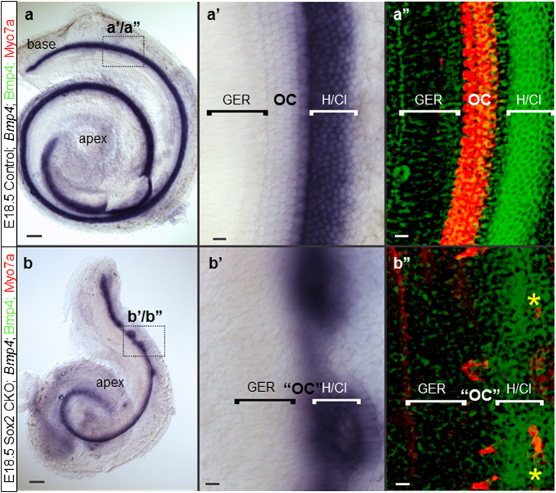 """The cellular boundaries of the inner ear are changed in the Sox2 CKO. ( a,a', b,b' ) Loss of Sox2 results in aberration of Bmp4 expression. Instead of being separated by the organ of Corti from the GER, Bmp4 expression is adjacent to the GER. ( b, b',b"""" ) Only the base shows rings of lateral Bmp4 expression and Myo7a positive HCs are both in the center of these rings as well as at the boundary between GER and Bmp4 domain (b""""; yellow asterisks). ( a'-a"""" ) In controls, the Bmp 4 expression in Hensen/Claudius cells is always lateral to the organ of Corti. Scale bars: 10 μm except 100 μm in a and b. GER, greater epithelial ridge; H/Cl; Hensen/Claudius cells; OC, organ of Corti; """"OC"""", atypical organ of Corti in the mutant."""