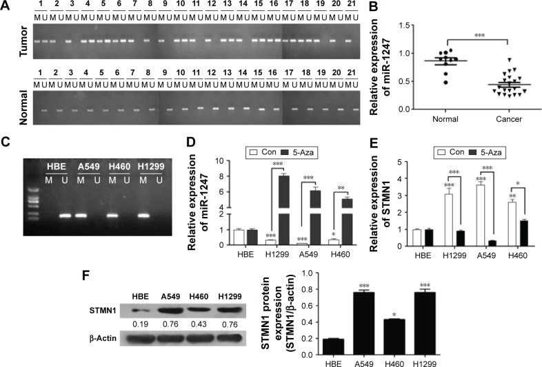 MiR-1247 is deregulated by methylation in non-small lung cancer tissues and cell lines. Notes: ( A ) The <t>DNA</t> methylation level of miR-1247 in 21 pairs of NSCLC and adjacent tissue samples were analyzed by MSP. ( B ) MiR-1247 expression levels were detected by <t>qRT-PCR</t> in 21 NSCLC and 21 normal tissue samples. ( C ) MSP analysis of the DNA methylation level of miR-1247 in HBE, A549, H460, and H1299 cell lines. ( D ) MiR-1247 levels of HBE, A549, H1299, H460 cells, performed by qRT-PCR. ( E ) STMN1 levels. ( F ) The STMN1 protein expression was analyzed by Western blot. Bars represent mean values ± standard deviation. *** P