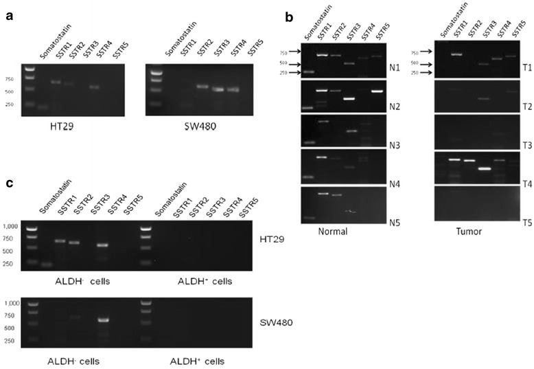 Expression of Somatostatin and its receptors in HT29 and SW480 colon cancer cell lines and patient matched normal and tumor tissue samples. a Cells were grown to 70–80% confluency, RNA was isolated and RT-PCR was performed. The HT29 cells express SST, SSTR1, SSTR2, and SSTR4. The SW480 cells express faint SSTR1, SSTR2, SSTR3, and SSTR4. This analysis was repeated three times and the gel images are representative of one data set for each cell line. b RT-PCR was performed to look at mRNA levels of SST and SSTR1-5 in these 5 patient samples. In all the normal samples, SST and SSTR1 were expressed. However, in the matching tumor samples, SST expression was gone and SSTR1 was present in 4 out of 5samples. N1 and T1 = matched normal and tumor tissue of patient #1. c Sorted ALDH+ and ALDH- cells from SW480 and HT29 cell lines were analyzed for mRNA expression of somatostatin and its receptors. RT-PCR analysis was performed on ALDH- and ALDH+ cells. These results indicate that the ALDH+ cells do not co-express somatostatin or its receptors in either cell line