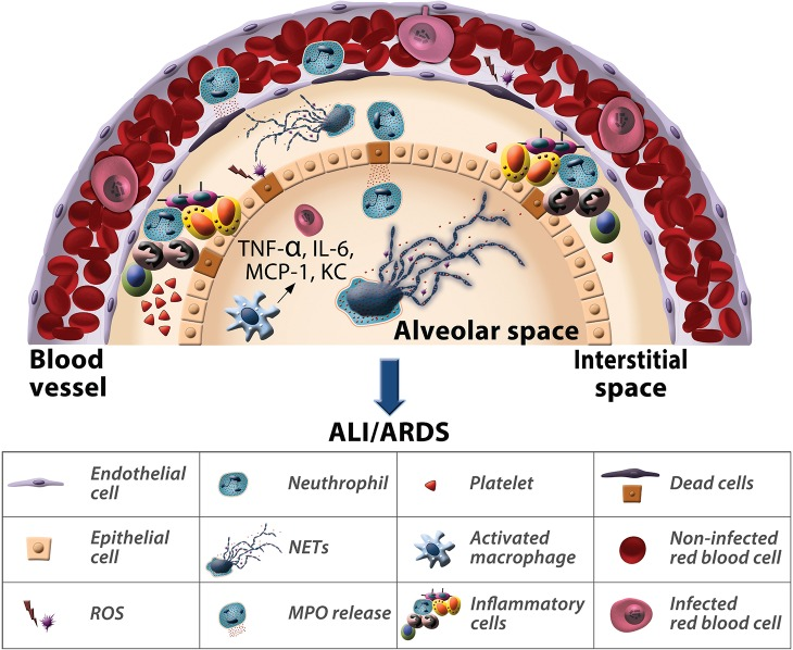 Neutrophil interactions in malaria-associated ALI/ARDS. Following P . berghei ANKA infection in DBA/2 mice, neutrophils promote the pathogenesis of ALI/ARDS. In particular, the release of myeloperoxidase and reactive species of oxygen and the formation of neutrophil extracellular traps determines the cause of death of these mice.