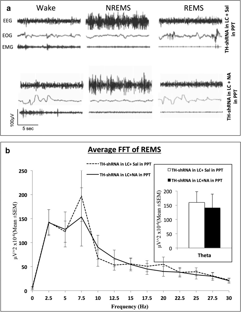 a , Representative SleepSign-recorded simultaneous traces of EEG, EOG, and EMG showing waking state, NREMS, and REMS episodes in one rat treated with TH-shRNA injection into LC and injected with saline or NA into the PPT (as labeled on the figure). b , The power spectrum of average FFT (Fast Fourier Transformation) of EEG of all the REMS episodes during the 10:00 A.M. to 10:00 P.M. recording period of one rat under different conditions. Dashed line shows the data of the rat with TH-shRNA injection into LC and saline injection into PPT (total number of episodes of REMS = 131 ± 10), while the continuous line shows TH-shRNA injection into LC and NA injection into PPT (total number of episodes of REMS = 91 ± 13). It shows that the theta waves (5–7.5 Hz) peaked in the background of other frequencies. The histogram in the inset shows the average power of the theta waves (5–7.5 Hz) only of the rats shown in the line plot under the two conditions. It shows that the average power of theta waves was comparable under the two treatment conditions.