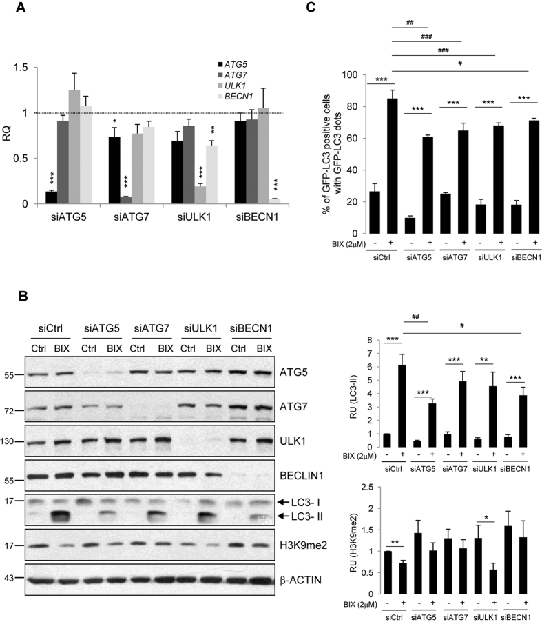 BIX01294-induced autophagy requires ATG proteins. Knockdown of ATG5, ATG7, ULK1 and BECN1 at the mRNA ( A ) and protein level ( B ) using specific siRNAs. Glioma cells were transfected with ATG -targeting siRNA for 48 h, followed by 2 μM BIX01294 for 24 h. ( A ) Each bar represents the mean ± SEM of three independent experiments. Statistical significance calculated to siCtrl-transfected cells (*P