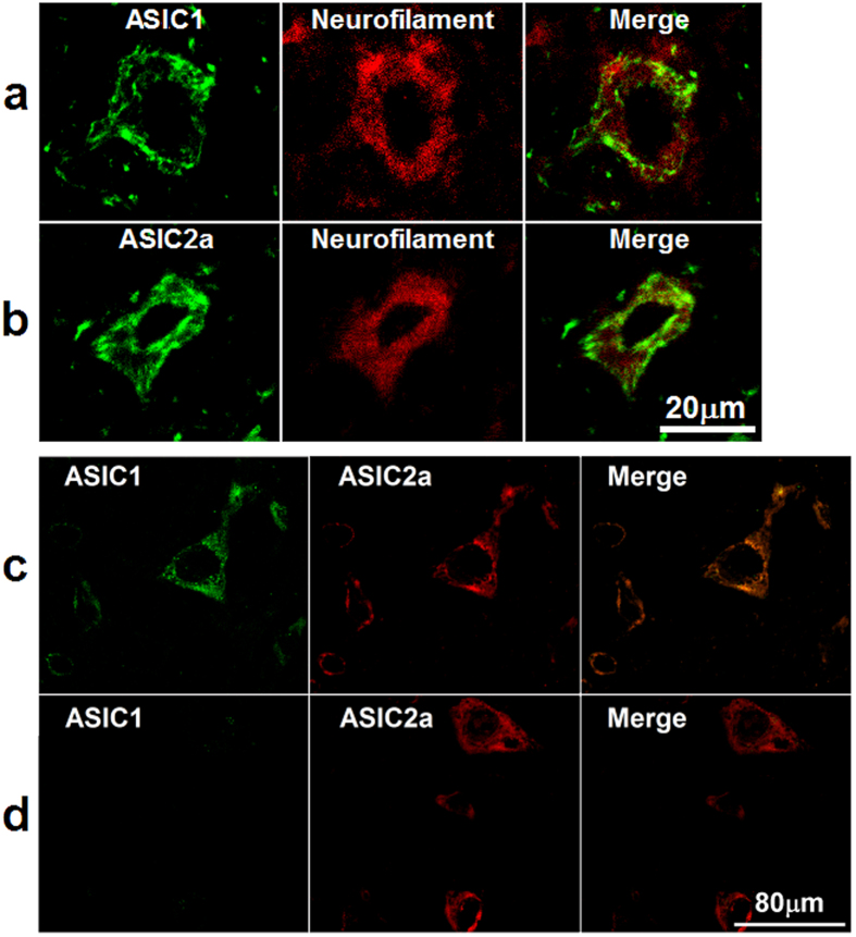 ASIC1 and ASIC 2a were expressed and co-localized in the VLM neurons of adult rat. (a) and ( b) Representative confocal photomicrographs showed co-localization of ASIC1-ir and ASIC2a-ir (green) with neurofilament-ir (red) in the VLM. ( a) and ( b ) are same scale bar (scale bar = 20 μM). (c) Representative confocal photomicrographs showed co-localization of ASIC1 (green) with ASIC2a (red) in the VLM. (d) Representative confocal photomicrographs showed there are very few of neurons expressed ASIC2a (red) only. ( c) and ( d ) are same scale bar (scale bar = 80 μM).