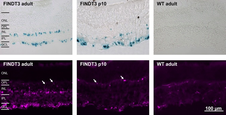 Vertical cryostat sections of FINDT3 and wildtype mouse retinae stained for β-galactosidase. Top row: X-gal staining, blue dots indicate β-gal-positive cells. In adult FINDT3 mice (left) staining occurs in the ganglion cell layer (GCL) and inner nuclear layer (INL), but not in the outer nuclear layer (ONL). In FINDT3 mice at postnatal day 10 (p10, middle) staining mainly occurs in the GCL with only few labeled cells in the INL. There is no staining in the adult wildtype control (WT, right). Bottom row: Staining with the mouse monoclonal antibody against β-gal. As in the X-gal staining, adult FINDT3 mice show two bands of stained cells in the GCL and INL, respectively. At p10 staining mainly occurs in the GCL with few labeled cells in the INL. In all these immunolabeled sections, blood vessels are also stained by the anti-mouse secondary antibody (some arrowed); in the wildtype control, the only labeled structures are blood vessels. OPL, outer plexiform layer; IPL, inner plexiform layer. Images were acquired with a Zeiss Axiophot 2 microscope (top row) and a Zeiss Axioplan 2 microscope (bottom row). The scale bar applies to all images.
