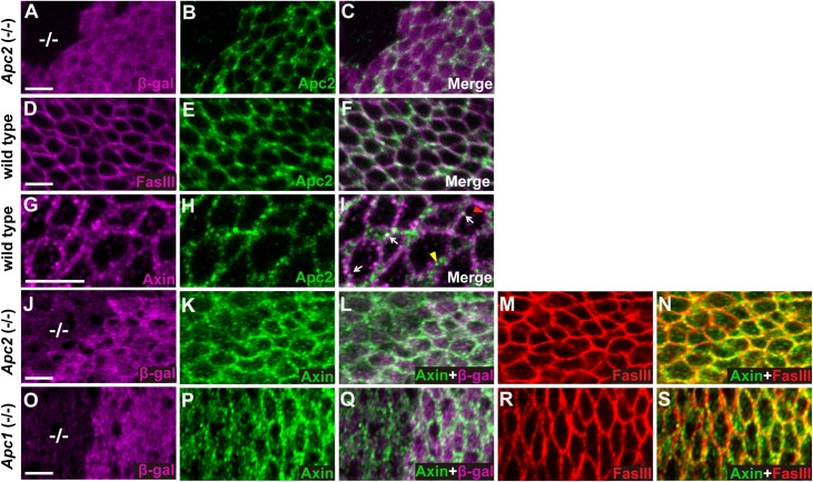 Apc is required for the localization of Axin to puncta juxtaposed with cell membrane. Images of third instar larval wing imaginal discs stained with indicated antibodies; genotypes at left margin. (A-C) Apc2 antibody revealed specific staining of endogenous Apc2 (green), which is absent in Apc2 19 . 3 null mutant clones (marked by the absence of β-gal (magenta), -/- in A). (D-F) Double staining with Fas III (magenta) and Apc2 antibodies indicated that Apc2 partially overlaps Fas III and is enriched at cell cortex. (G-I) Double staining with Apc2 and Axin (magenta) antibodies reveals that Apc2 is present at some membrane-proximal Axin puncta (white arrow), whereas distinct Apc2 or Axin puncta are also observed (yellow and red arrowheads respectively). (J-N) Wing disc triple labeled with β-gal (J, magenta), Axin (K, green) and Fas III (M, red) antibodies. Merge of Axin and β-gal is shown in (L), and merge of Axin and Fas III is in (N). Apc2 19 . 3 homozygous null mutant clones are marked by the absence of β-gal (-/- in J). Endogenous Axin staining indicates reduced Axin puncta at the basolateral membrane in Apc2 19 . 3 null mutant clones (K, L, N). Fas III localization is not disrupted in Apc2 19 . 3 mutant clones (M). (O-S) Wing discs bearing Apc1 Q8 null mutant clones (marked by the absence of β-gal staining, -/- in O) were stained with β-gal (O), Axin (P) and Fas III (R) antibodies. Merge of Axin and β-gal is shown in (Q), and merge of Axin and Fas III is in (S). Axin puncta are reduced at the basolateral membrane in Apc1 Q8 mutant clones (P, Q, S). Fas III localization is not disrupted in Apc1 Q8 mutant clones (R). Scale bar: 5μm.