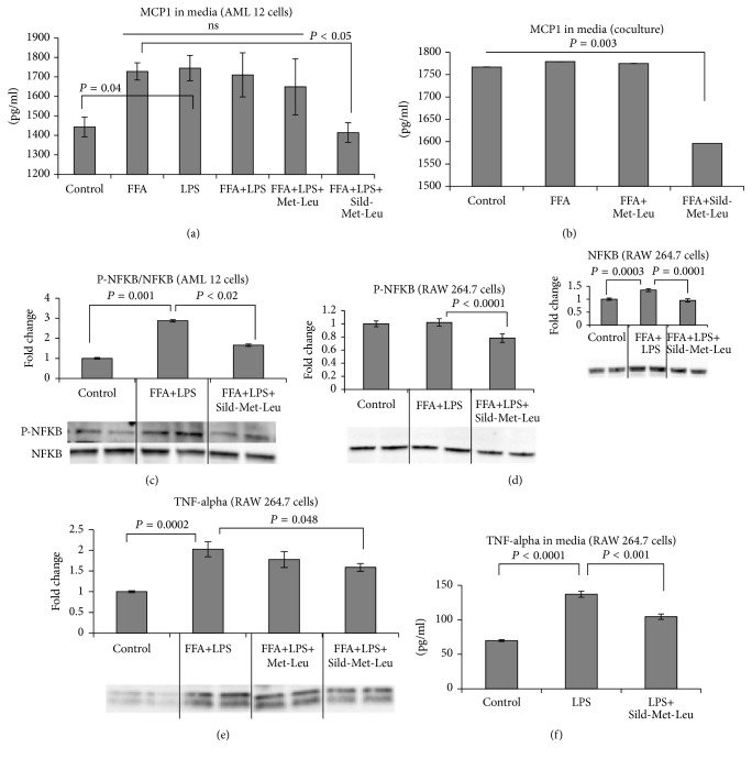 Sild-Met-Leu treatment decreases inflammatory marker in hepatocytes and macrophages. Mouse hepatocytes (AML cells) and macrophages (RAW 264.7 cells), grown individually or in coculture, were treated with sildenafil (1 nM), metformin (0.1 mM), and leucine (0.5 mM) as indicated for 24 hours after induction with free fatty acids (FFA) and/or LPS. Nontreated cells (control) were included for comparison. ((a) and (b)) Monocyte chemotactic protein- (MCP-) 1 secretion in media of AML cells and of hepatocyte-macrophage coculture. Data are presented as mean ± SEM ( n = 4 to 10). ((c) to (e)) Protein expression of phosphorylated and total NF- κ B and <t>TNF-alpha</t> in AML 12 hepatocytes and RAW 264.7 macrophages. Quantitative data are presented as mean ± SEM ( n = 4), and representative blots are shown. (f) Macrophage tumor necrosis factor- (TNF-) alpha secretion was measured in the media. Data are presented as mean ± SEM ( n = 5).