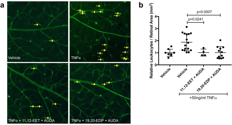 The effect of 11,12-EET or 19,20-EDP plus AUDA on TNFα-induced retinal leukostasis. Mice were injected intravitreally with 50 ng/ml TNFα in the presence or absence of 11,12-EET (0.5 μM) or 19,20-EDP (0.5 μM) with AUDA (10 μM). ( a ) Representative images of retinal flatmounts with Concanavalin-A perfusion; yellow arrows indicate adhered leukocytes; ( b ) quantification of adherent leukocytes normalized to retinal area. Bars represent mean ± SD (vehicle: n = 8; TNFα: n = 16; 11,12-EET + AUDA: n = 4; 19,20-EDP: n = 12).