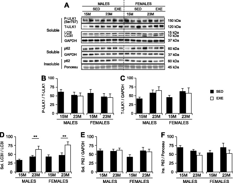 Markers of autophagy in the quadriceps muscles of 15-month SED, 23-month SED, and 23-month RWE mice, of both sexes. P-ULK1(Ser757) was quantified relative to t-ULK1 ( a , b ), and t-ULK1 to the loading control GAPDH ( a , c ). Ratios of LC3II/LC3I were detected in the 1% NP40 soluble protein fraction, with GAPDH displayed to demonstrate equal loading ( a , d ). Protein amounts of p62 were quantified in both the 1% NP40 soluble and insoluble fractions, and standardized relative to GAPDH and Ponceau S (stained band between 50 and 37 kDa), respectively ( a , e , f ). Data were analyzed by ANOVA, using age and sex and sex and activity as variables. Data are mean ± SEM. Asterisk denotes significance at * P