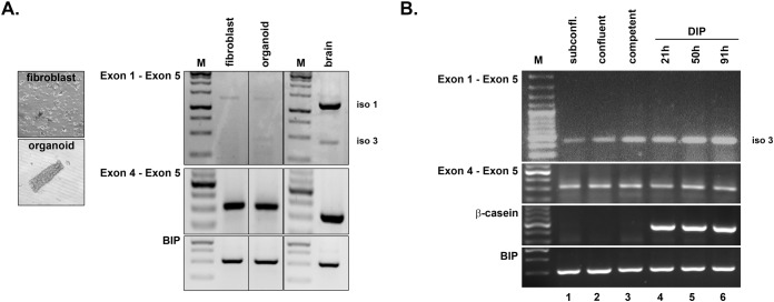 Detection of shrew-1 transcript variant expression during murine mammary gland differentiation. (A) Tissue digest of whole fat pads from a virgin mouse was performed to separate mammary organoids and fibroblasts. RT-PCR was performed with a primer pair to detect protein isoforms 1 and 3 (E1 to E5, isoform 1: 1269 bp; isoform 3: 463 bp). The presence of shrew-1 cDNA was confirmed with a primer pair to amplify E4, which is common to all known transcript variants (E4 to E5; 323 bp). cDNA of brain tissue (E13.5) served as positive control for both shrew-1 transcript variants encoding shrew-1 protein isoforms 1 and 3 respectively; the housekeeping gene BIP served as positive control for cDNA synthesis. cDNA analysis showed that both shrew-1 transcript variants corresponding to protein isoforms 1 and 3 are present in organoids but only isoform 1 is detectable in fibroblasts. M, bp marker. (B) The lactogenic inducible mammary epithelial cell line HC11 was differentiated in vitro with a hormone cocktail (DIP). RT-PCR with primer pairs to detect shrew-1 transcript variant expression (E1 to E5, isoform 1: 1269 bp hash; isoform 3: 463 bp delta) or the presence of all known shrew-1 transcript variants (E4 to E5; 323 bp) indicate that only the shrew-1 transcript encoding protein isoform 3 is expressed during all differentiation stages (delta). M, bp marker.