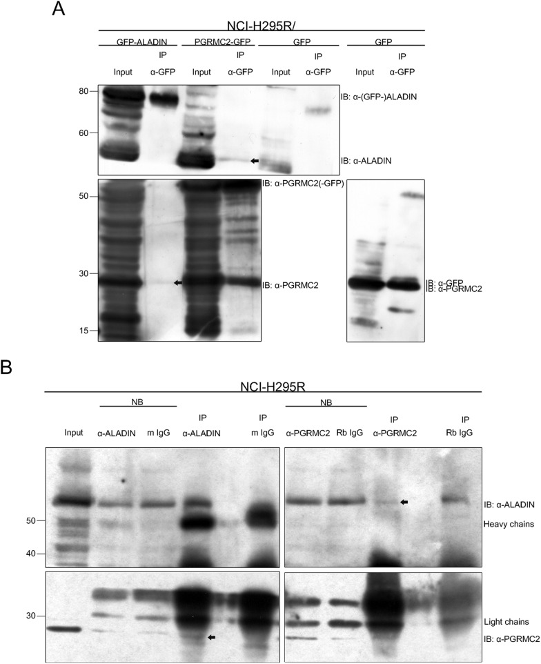 <t>PGRMC2</t> interacts with ALADIN determined by IP-western and reciprocal IP- w estern assays. (A) Whole cell lysates of GFP-ALADIN, PGRMC2-GFP- and GFP- (as negative control) expressing NCI-H295R cells were used and GFP pulldown performed followed by western blot with indicated antibodies. PGRMC2 (24 kDa, arrow) could be detected after GFP-ALADIN (86 kDa) pulldown. ALADIN (59 kDa, arrow) and PGRMC2 could be both detected after PGRMC2-GFP (51 kDa) pulldown. GFP (27 kDa) was ascertained after GFP control pulldown but the control remained empty for PGRMC2 and ALADIN. (B) Whole cell lysates of NCI-H295R cells were used for ALADIN and PGRMC2 pulldown. Normal mouse (m IgG) and rabbit IgGs (Rb IgG) served as negative control. Western blot was performed with indicated antibodies. Non-bound (NB) IP fractions are also shown for each pulldown and bound IP eluates are separated by one lane each from the specific controls to eliminate false positive detection. PGRMC2 (arrow) precipitated in endogenous ALADIN pulldown. Control m IgG pulldown remained empty. ALADIN (arrow) reciprocally precipitated after PGRMC2 pulldown. Control Rb IgG pulldown remained empty showing a cross-reactive band a few kDa higher than ALADIN.