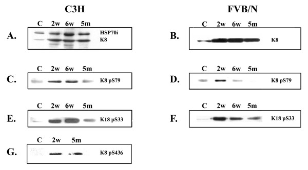 Biochemical analysis of livers from C3H and FVB/n mice. Western blots from C3H mouse livers; A, K8 and HSP70i; C, K8 pS79; E, K18 pS33; G, K8 pS436. Western blots from FVB/n mouse livers; B, K8; D, K8 pS79; F, K18 pS33.