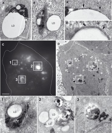 EM reveals that Rab10-associated autophagosomes extend membrane to envelop adjacent LDs. ( A and B ) Low-magnification EM of LD-autophagosome interactions in HuH-7 cells that were transfected to express an active Q68L form of GFP-tagged Rab10 before starvation in HBSS for 1 hour, followed by fixation and embedding. Scale bars, 1 μm. ( A′ and B′ ) Higher magnification of boxed regions shows autophagic membrane extensions (arrows) moving outward along the LDs during the envelopment process. ( C and D ) Corresponding low-magnification fluorescence (C) and electron (D) micrographs of a cell exhibiting several prominent Rab10-positive LDs reveal numerous LDs with and without associated Rab10-positive autophagic structures (scale bars, 2 μm). ( 1 to 3 ) Correlative EM images of HuH-7 cells expressing active GFP-Rab10 that were cultured on finder grids and photographed by phase and fluorescence microscopy to first locate and identify Rab10-LD–positive structures before fixation and embedding. Boxes show corresponding higher-magnification EM of these structures, confirming the intimate association of Rab10-positive membranes with the engulfed LDs. APM, autophagic membrane.