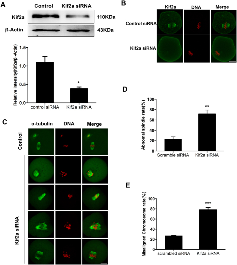 Depletion of Kif2a causes abnormal spindles and misaligned chromosomes in mouse oocytes. ( A ) Western blotting results for Kif2a after siRNA injection were cropped gels. After microinjection of Kif2a or control siRNA, oocytes were incubated in M2 medium containing 100 μm IBMX for 24 h, then washed 5 times and placed in IBMX-free M2 medium for 8 h, followed by Western blotting. Relative expression of Kif2a after siRNA injection. The intensity of Kif2a/β-actin was assessed by gray level analysis. Data are presented as Means ± SEM of 3 independent experiments (*P