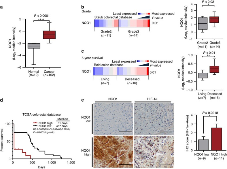 Upregulation of NQO1 correlates with poor prognosis and expression of HIF-1α in colorectal cancer. ( a ) An Oncomine analysis of the TCGA colorectal database indicated that NQO1 expressions are elevated in colorectal cancers ( n =102) compared with normal colorectal tissues ( n =19). **** P