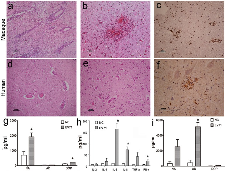 Histopathological characteristics of CNS tissue from EV71-infected rhesus macaques and human patients . Typical pathological changes in the brain stem include the following: (A,D) inflammatory cells aggregated near vascular tissue; (B,E) neuron degeneration and glial cell proliferation and glial nodule formation; (C,F) EV71 viral antigen expression in CNS tissues from EV71-infected rhesus macaque and human patients. Monoamine (G) and cytokine (H) detection in brain stem homogenates, and monoamine (I) detection in the peripheral blood from infected rhesus macaques. NA, noradrenalin; AD, adrenalin; DOP, dopamine; NC, negative control. * p ≤ 0.05 compared with the corresponding control group.
