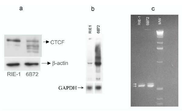 CTCF and Igf2 expression in RIE-1 and 6B72 cells. Levels of CTCF protein were assessed by Western blot analysis (A), normalized to a β-actin control. Levels of Igf2 transcripts were assessed by Northern blot analysis (B) normalized to GAPDH control. Protein content, as assayed by western blot analysis and standardized to β-actin was decreased in the 6B72 cell clone to 30% of control. Reverse transcriptase PCR analysis of Igf2 transcripts (C). The RT-PCR products (arrows) were separated on a 2% agarose gel, revealing an additional transcript in the 6B72 cells. The DNA sequence of the larger RT-PCR product (D) revealed an alternatively spliced transcript ( Igf2 sv ) generated by splicing of exon 2 to a cryptic 3' splice site located 14 nucleotides upstream of exon 3.