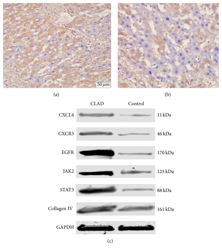 Validating CLAD-associated proteins in recipient rat liver allografts. (a) Immunohistochemistry analysis showed that <t>CXCL4</t> detected on POD 60 was significantly expressed in CLAD liver allografts, compared with the control. (b) Validation by Western blot analysis on POD 60 showed that CXCL4, CXCR3, EGFR, JAK2, STAT3, and Collagen IV were significantly overrepresented in all CLAD liver grafts as compared with the control.