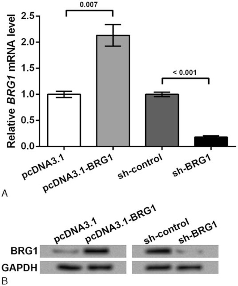 Overexpression and knockdown of Brahma-related gene 1 (BRG1) in rheumatoid fibroblast-like synoviocyte MH7A cells. MH7A cells were transfected with pcDNA3.1-BRG1 vector to overexpress BRG1 or short hairpin RNA (shRNA) vector of BRG1 (sh-BRG1) to knock down BRG1. Blank vectors pcDNA3.1 and sh-control were transfected in the corresponding control group. qPCR and Western blot were performed at 48 h post-transfection. GAPDH was used as an internal control. (A) The quantification of BRG1 mRNA level by qPCR in transfected cells. P values are indicated. (B) BRG1 protein level detected by Western blot in transfected cell. BRG1 = Brahma-related gene 1, IP = immunoprecipitation, GAPDH = glyceraldehyde 3-phosphate dehydrogenase, qPCR = quantitative polymerase chain reaction, shRNA = short hairpin RNA.