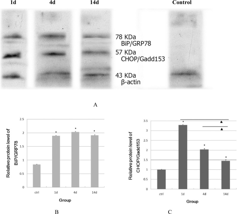 Expression of BiP/GRP78 and CHOP/Gadd153 proteins evaluated by Western blot analysis (a). Relative protein level of BiP/GRP 78 and CHOP/Gadd153 was analyzed by using one-way ANOVA (b, c). *Comparison with control group, P