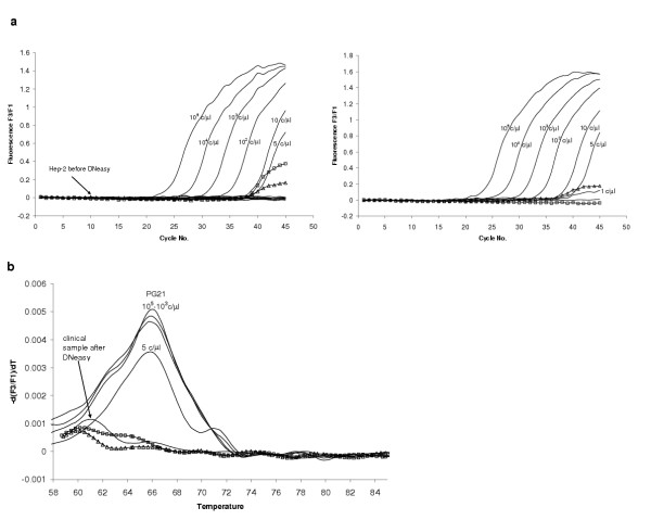 DNeasy treated samples. (a) Two LightCycler PCR runs, first one with standard dilution series of human Hep2 DNA before (flat negative curves) and after DNeasy (indicated with squares and triangles), showed on the left and second with DNA free water before (marked with squares) and after DNeasy (triangles) on the right. (b) Melting curve analysis of DNeasy treated H 2 O (triangles), Hep2 DNA (squares) and clinical sample.