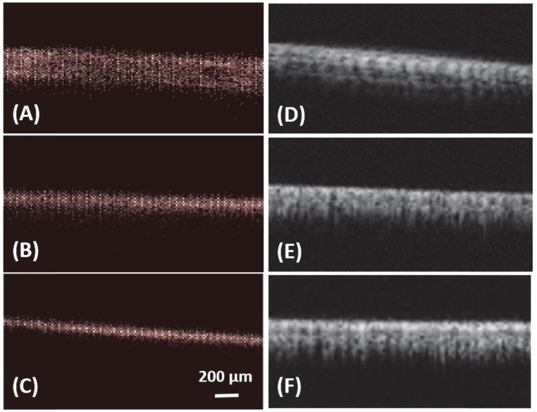 In vitro: ULM images (A-C) and super harmonic images (D-F) of <t>microtubes</t> with inner diameter of 150 µm (A, D), 75 µm (B, E) and 50 µm (C, F). Bar = 200 µm.